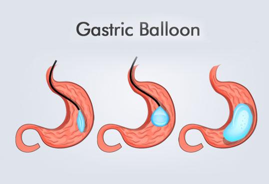 Gastric Balloon